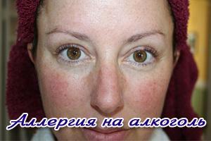 Аллергия на сладкое спиртное